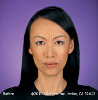 Azzalure and Botox Before