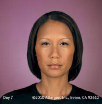 Azzalure and Botox After