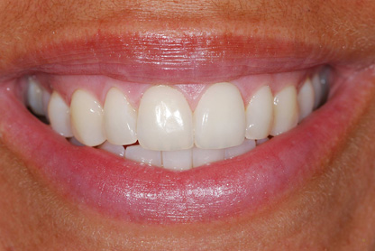 After Inman Aligners and Home Tooth Whitening