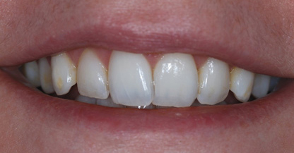 Before Inman Aligners and Home Tooth Whitening