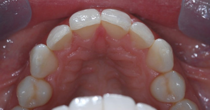 After Inman Aligners and Home Tooth Whitening (Uppers)