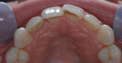 Before Inman Aligners and Home Tooth Whitening (Uppers)