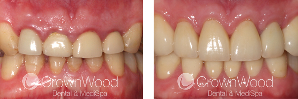 Crown Lengthening Before and After Treatment
