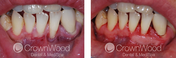 Gingival Graft Before and After Treatment