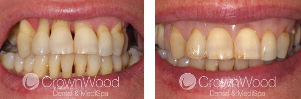 Gingival Veneer Before and After Treatment