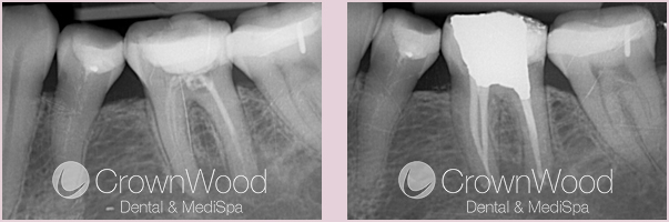 Successful Root Canal Treatment (Lower-Left 6)