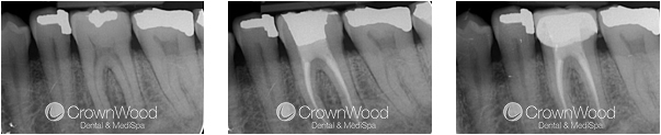 Root Canal Before and After Treatment