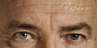 Glabella (between eyebrows) - Before Treatment