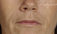 Nasial labial Folds - After Treatment