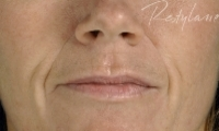 Nasial labial Folds - Before Treatment