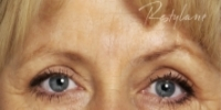 Glabella (between eyebrows) - After Treatment