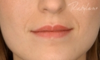 Lip Fillers - Before Treatment