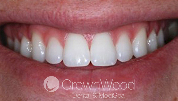 After Laser and Home Whitening