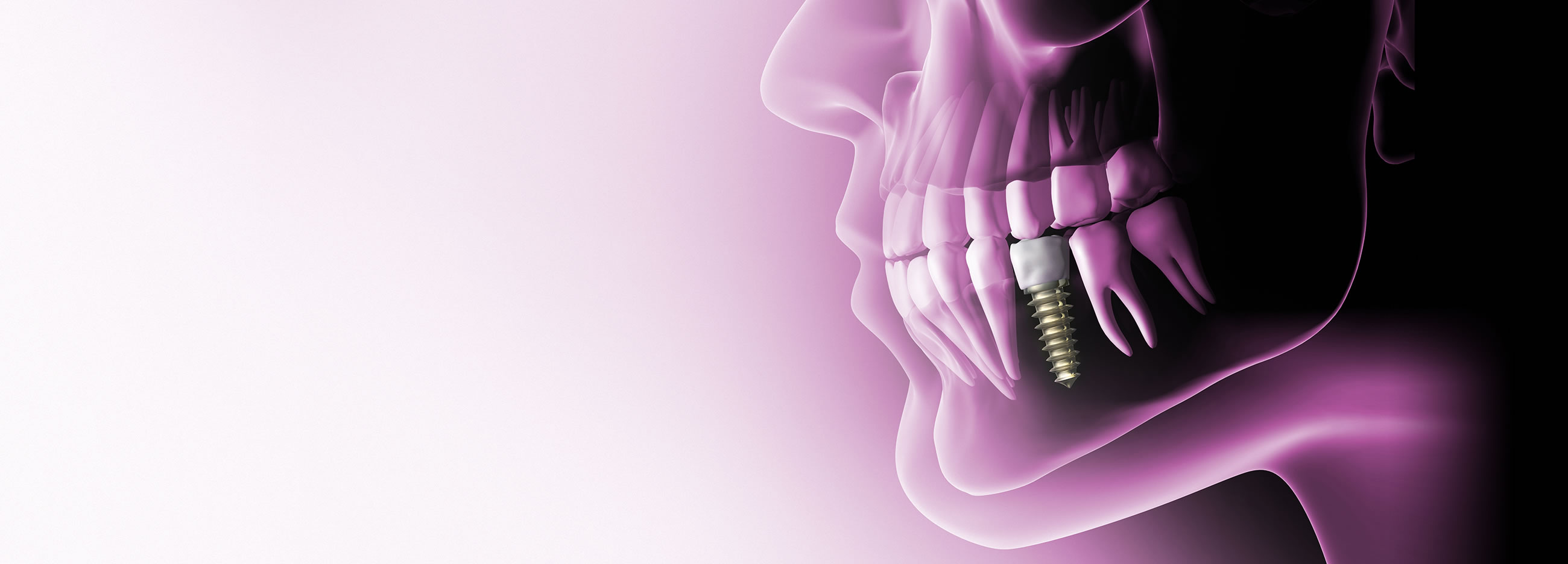 Dental Implant Treatment in Bracknell