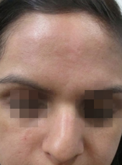 After ClearLift Pigmentation Treatment