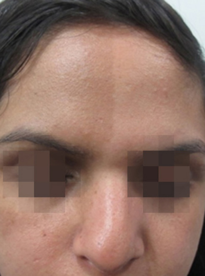 Before ClearLift Pigmentation Treatment