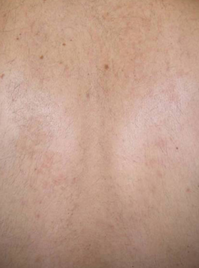 After Harmony XL Pro Hair Removal