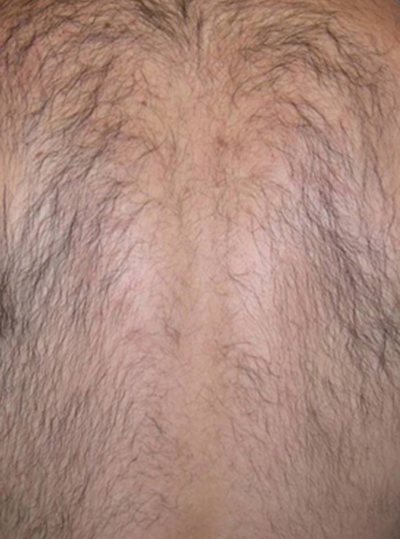 Before Harmony XL Pro Hair Removal