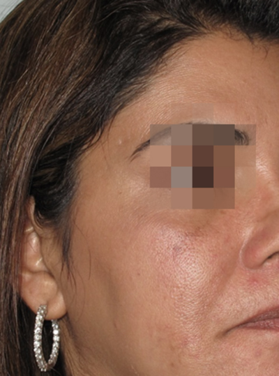 After Laser Skin Resurfacing