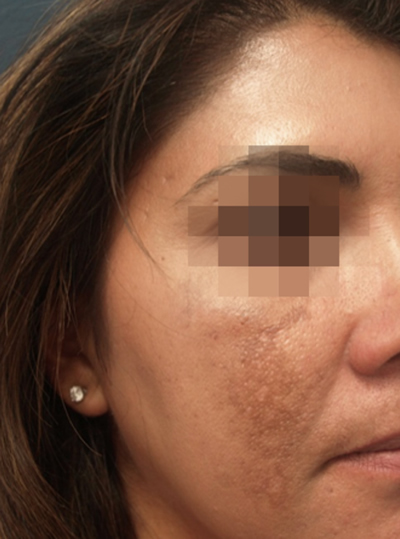 Before Laser Skin Resurfacing