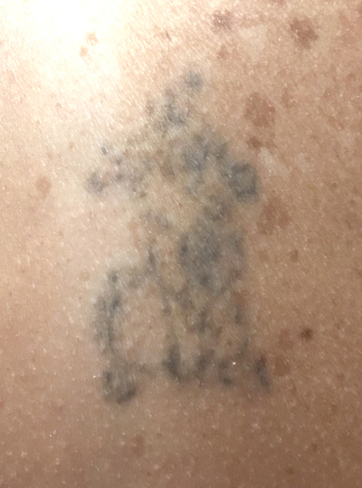 During Harmony Tattoo Removal Treatment