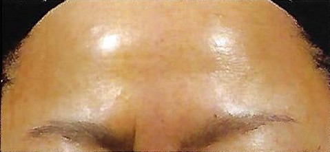 After Retinol Peel Treatment