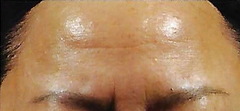 Before Retinol Peel Treatment