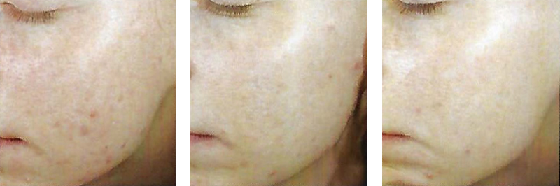 Retinol Peel for Acne Scarring