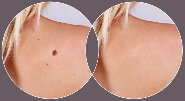 Dermatology at CrownWood MediSpa Bracknell