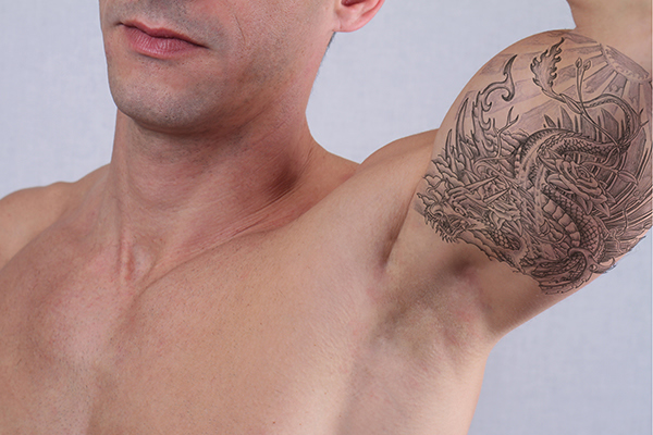 Male tattoo removal treatment in Bracknell