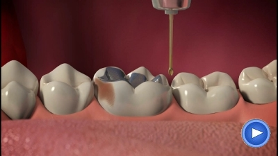 WebPakOnline Dental Crowns
