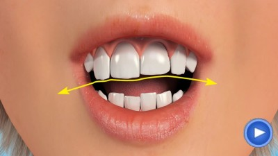 WebPakOnline Teeth Reshaping