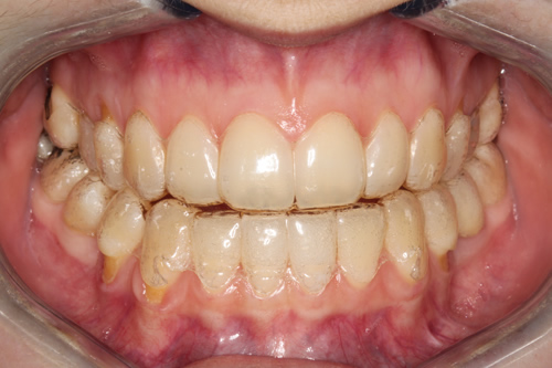 Jennas Invisalign Journey Month 1